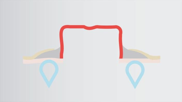 Wie funktioniert der Brava® Modellierbare Hautschutzring Plus?